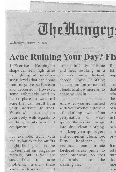 NEWSPAPER- Acne Ruining Your Day Fix It- 5 Acne Treatment Tips