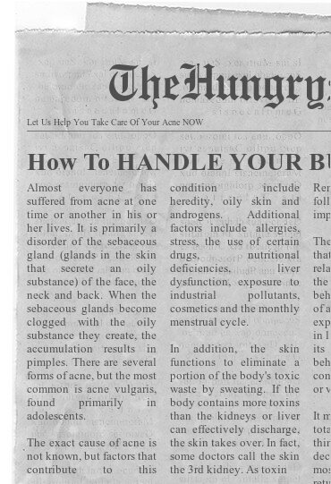 newspaper- Let Us Help You Take Care Of Your Acne NOW